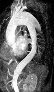Мрт головного мозга мра артерий головного мозга